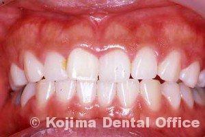 一本の歯のみの漂白1ヶ月後