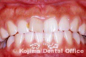 一本の歯のみの漂白