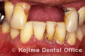 歯周治療009