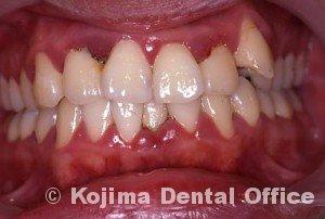 歯間部歯肉を自然な形に初診時①
