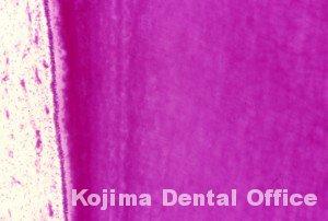 歯牙組織10