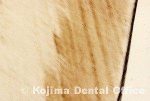 歯牙組織5