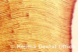 歯牙組織8