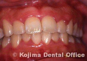 思春期の歯肉炎5