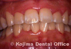 思春期の歯肉炎7