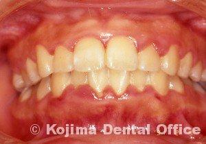 思春期の歯肉炎1