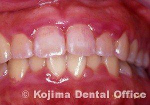 思春期の歯肉炎3
