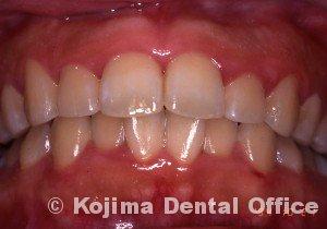 思春期の歯肉炎6