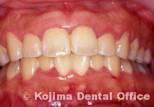 思春期の歯肉炎4