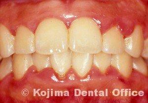 思春期の歯肉炎2