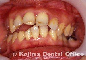 顎関節強直症2