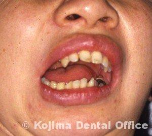 顎関節強直症1