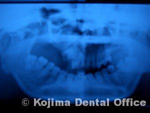 顎関節強直症4