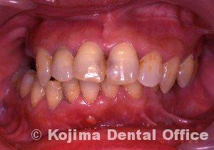 顎関節強直症10