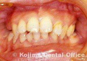 顎関節強直症8
