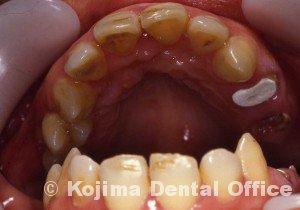 顎関節強直症3