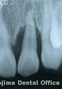 移植歯の歯肉8