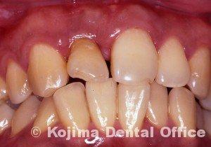 移植歯の歯肉17