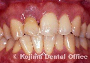 移植歯の歯肉14