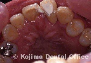 移植歯の歯肉15