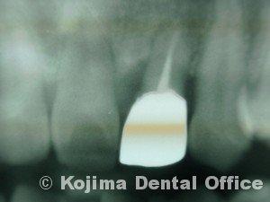 移植歯の歯肉23