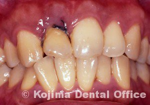 移植歯の歯肉9