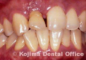 移植歯の歯肉11