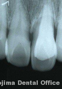移植歯の歯肉5