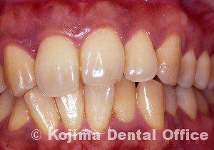 移植歯の歯肉3