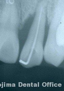 移植歯の歯肉16