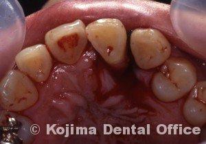 移植歯の歯肉7