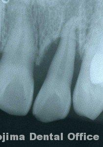 移植歯の歯肉13