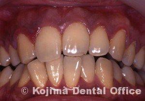 移植歯の歯肉1