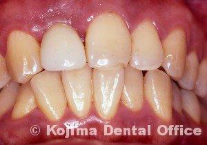 移植歯の歯肉19