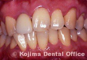 移植歯の歯肉21