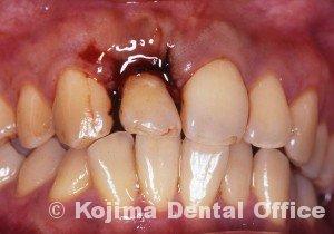 移植歯の歯肉6