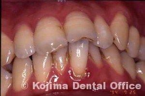 夫婦の歯周炎008