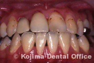 夫婦の歯周炎003
