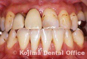夫婦の歯周炎007