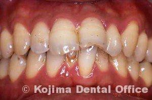 夫婦の歯周炎010
