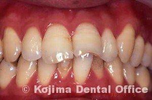 夫婦の歯周炎009