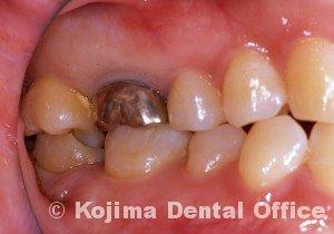 歯の移植2