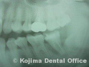 歯の移植3