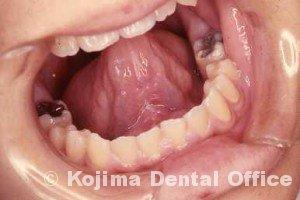 舌小帯異常4