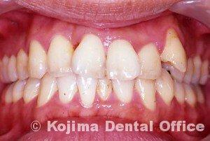 歯間部歯肉を自然な形に5年後