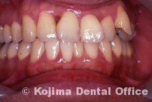 歯間部歯肉を自然な形に3年後