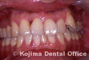 歯間部歯肉を自然な形に2年後FOp術後1ヶ月