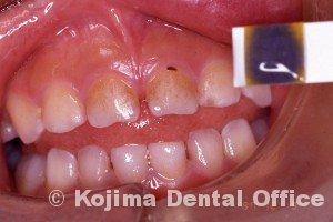 唾液の緩衝能1