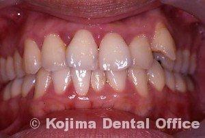 歯間部歯肉を自然な形に1年後