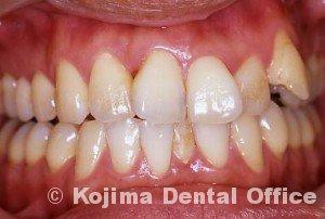 歯間部歯肉を自然な形に9年後